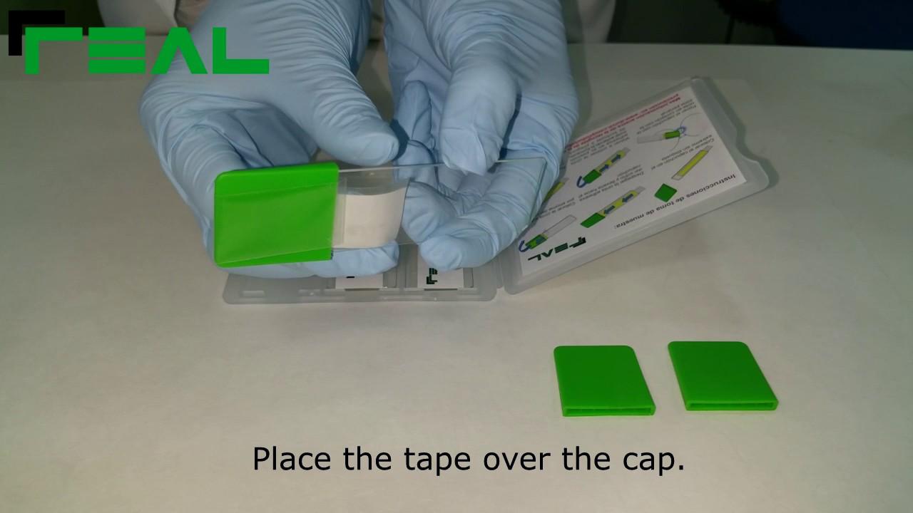 enterobiosis tape