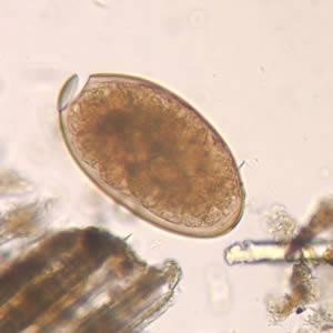 fascioliasis a fertőzés terjedése a parazita testének tisztításának népi módszere