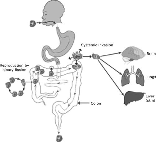 mit okozhatnak az agyi paraziták