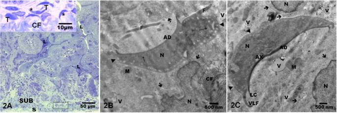 a flukes és a láncok életciklusa a belső szervek parazitái