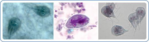 giardia virus mens)