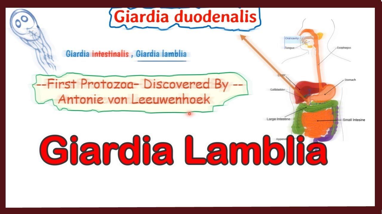 giardiasis és ízületek gyógyszerek férgek férgek számára
