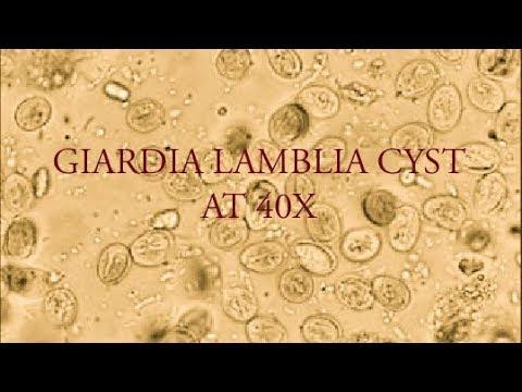 giardiasis video)