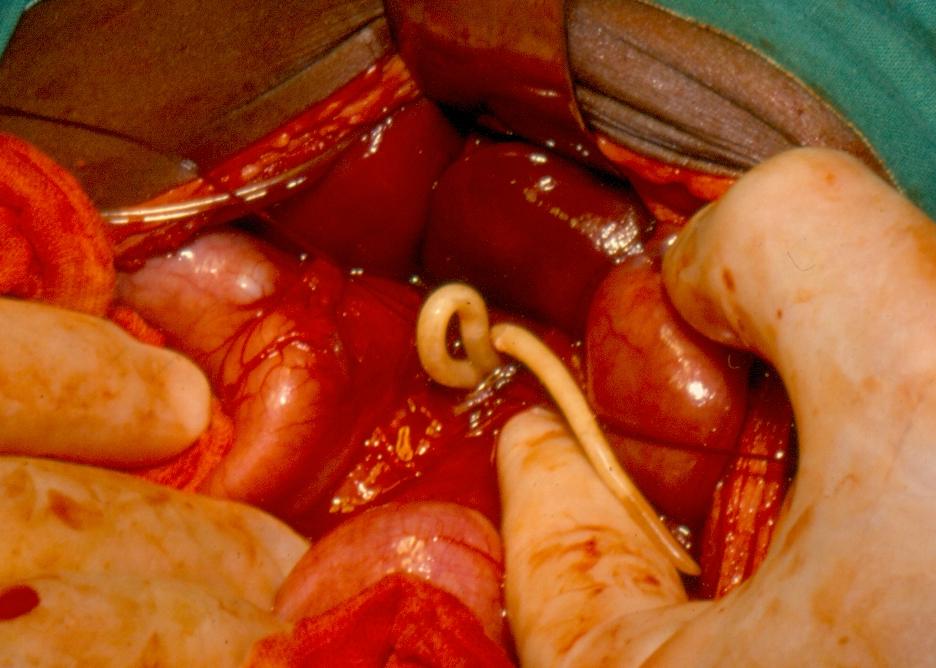 Helminthiases ascariasis
