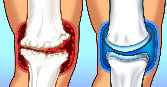 kerekféreg csont és izomfájdalma