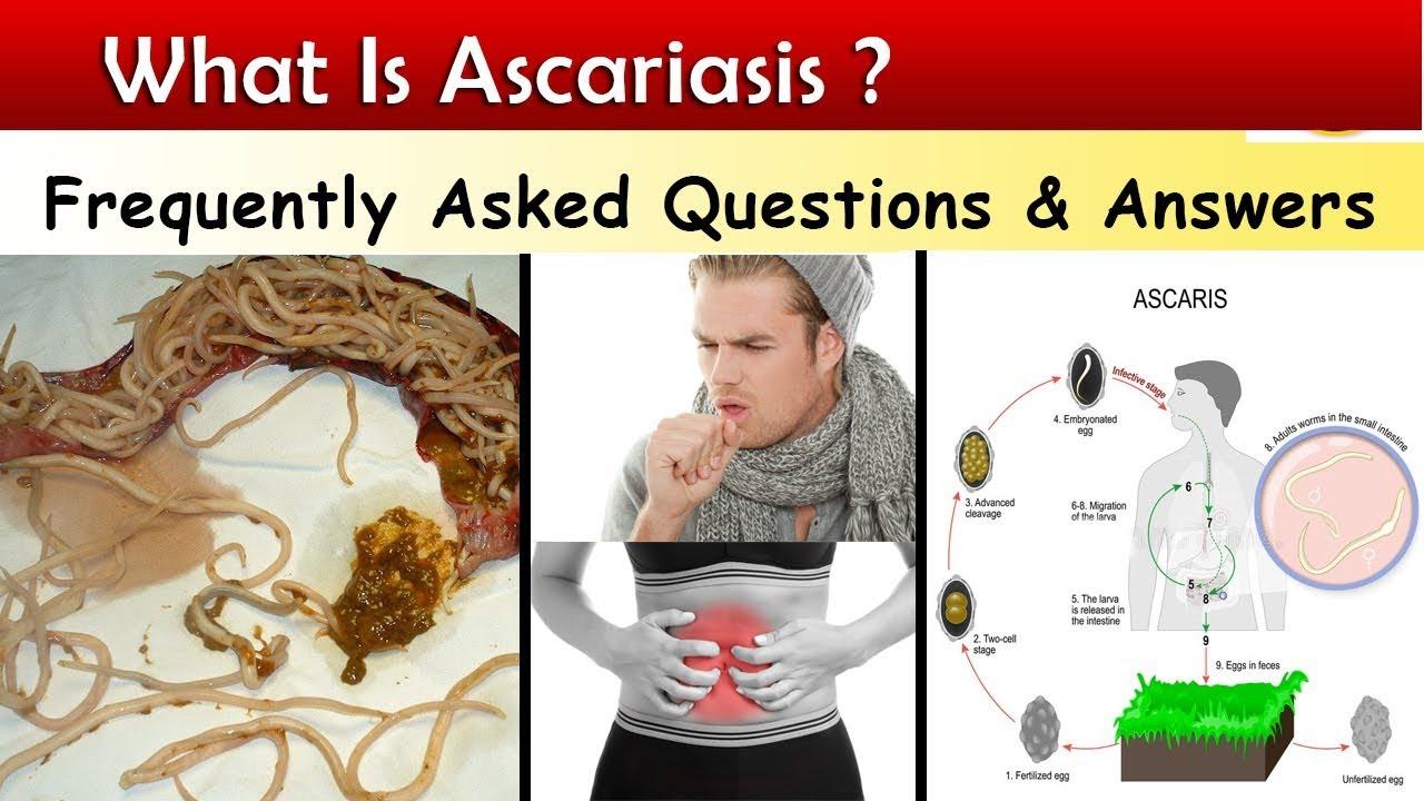 miért jött ki Ascaris egyedül