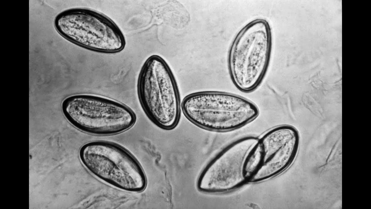 tojás féreg és enterobiosis hogyan adományozni