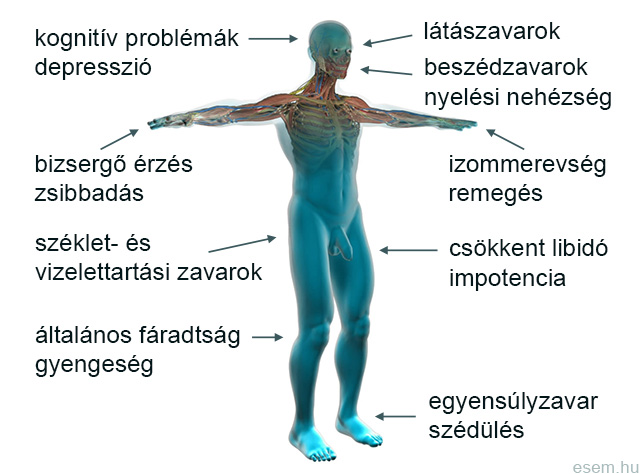 sclerosis multiplex kezelése