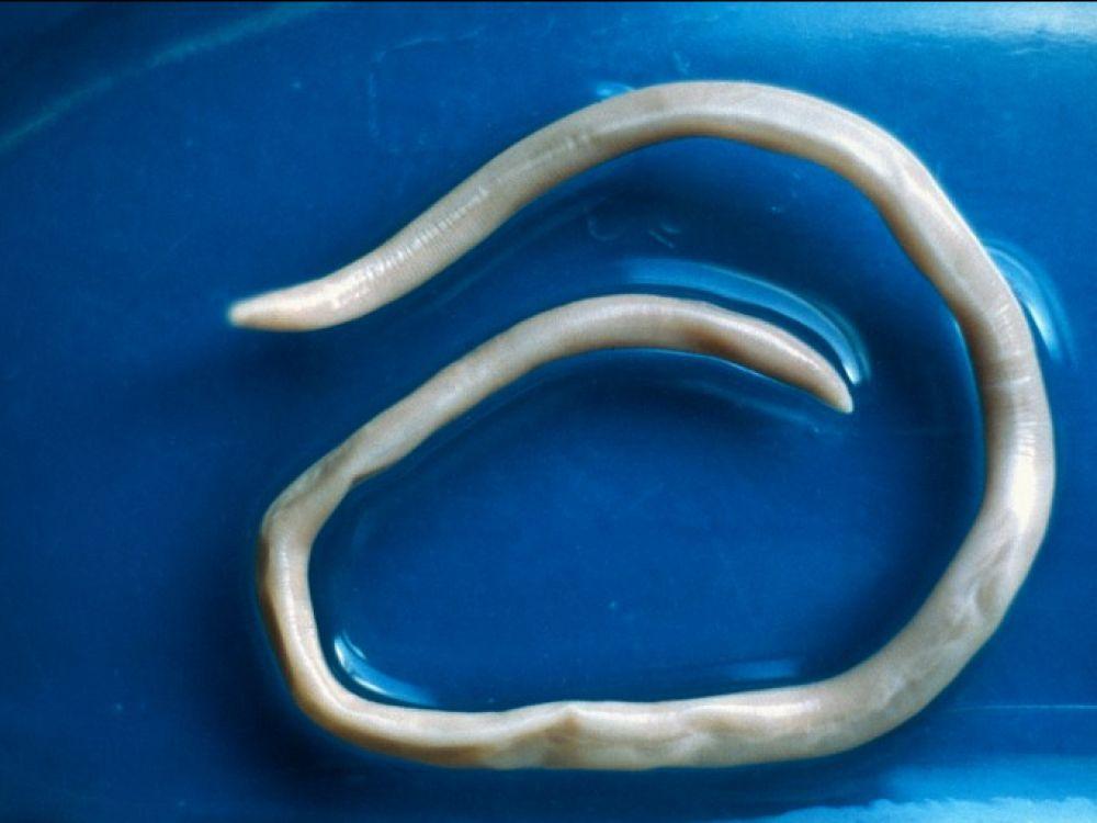 les parasites intestinaux