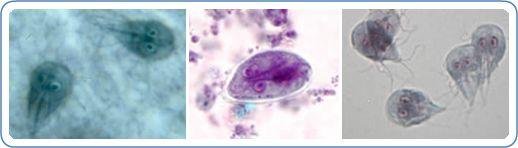 Giardiasis (giardiázis): kutyára, emberre egyaránt fertőző betegség, Giardia virus mens