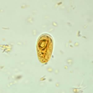 giardiasis cdc)