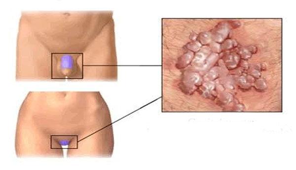 parazita viszkető bőrkezelés