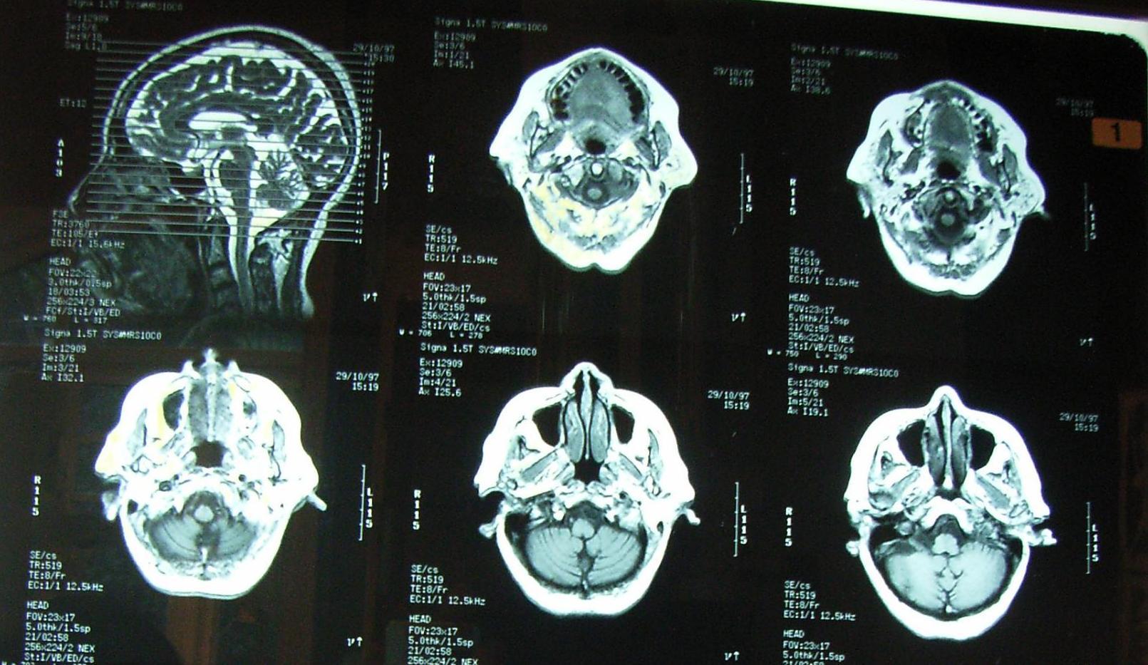 paraziták az emberi agyban CT