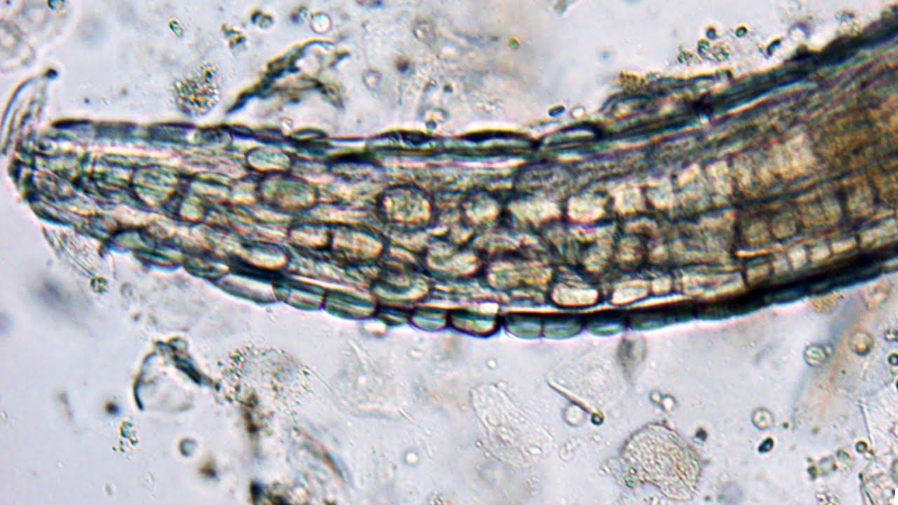 gongylonema pulchrum paraziták