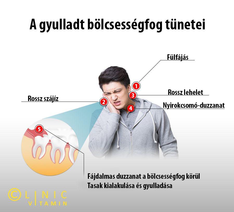 hogyan kell kezelni a férgeket felnőtt tablettákban