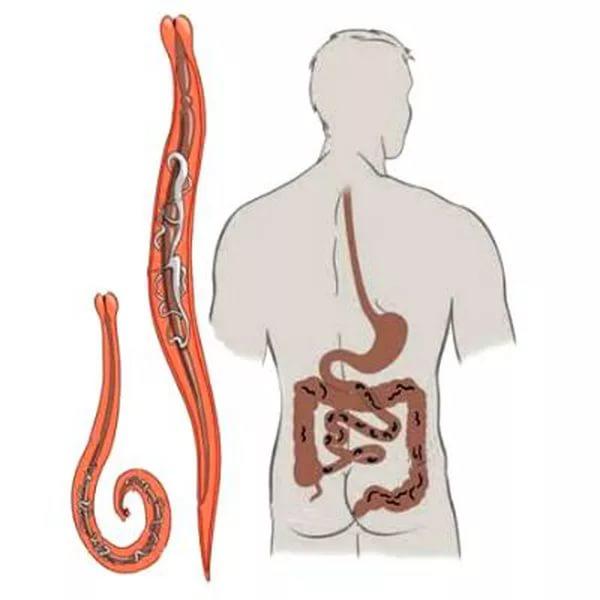 Paraziták az epehólyag tünetei