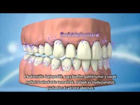 ínybetegség kezelése szájszag