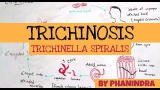 Trichinella kezelés felnőtteknél